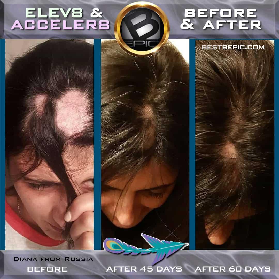 Elev8 against hair loss