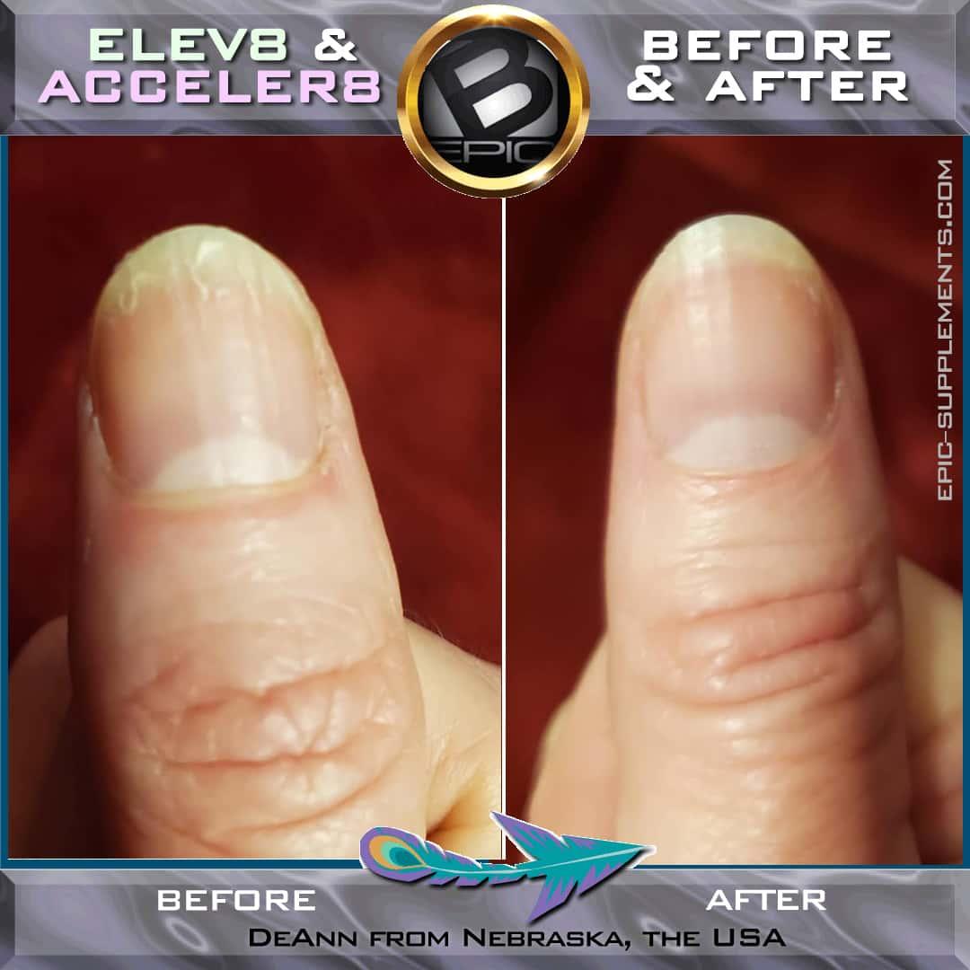 DeAnn Hanlon (Nebraska USA) review about Elev8 for Nails