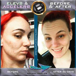 elev8-for-skin-acne