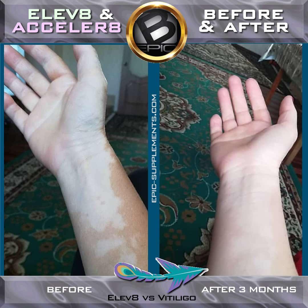 Elev8-Acceler8 vitiligo
