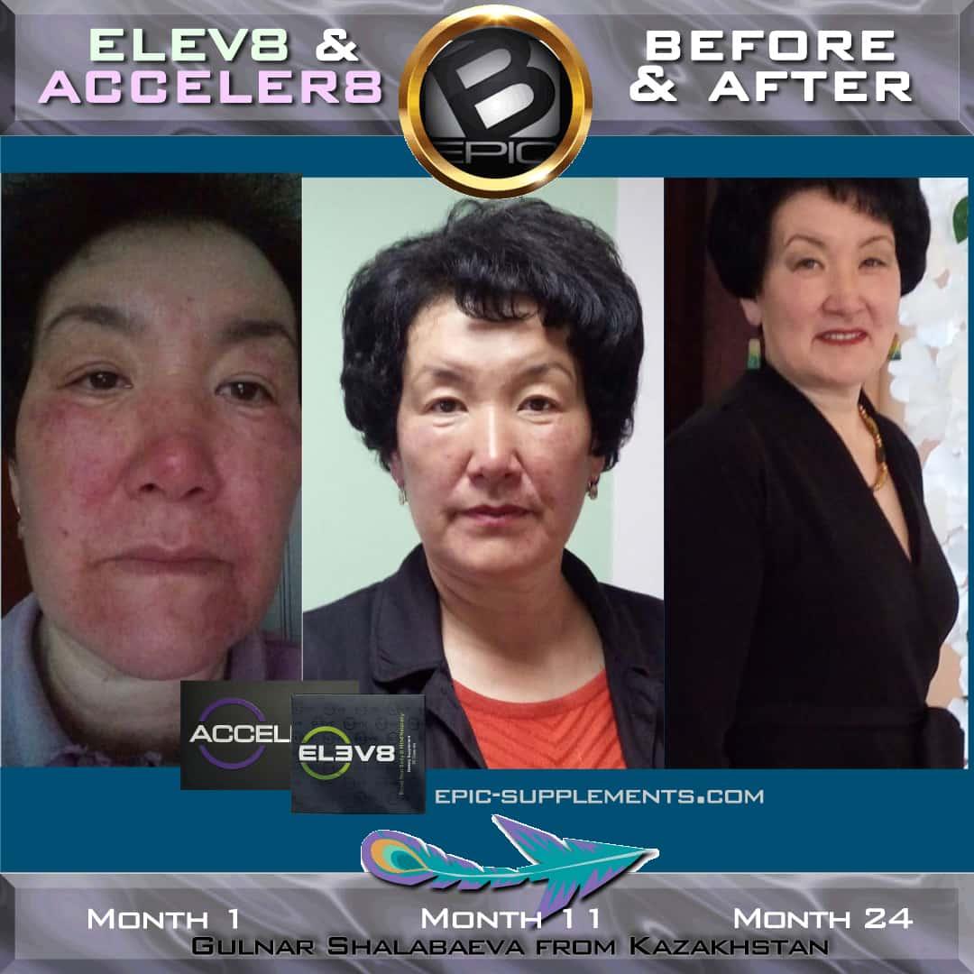 Elev8/Acceler8 for skin health