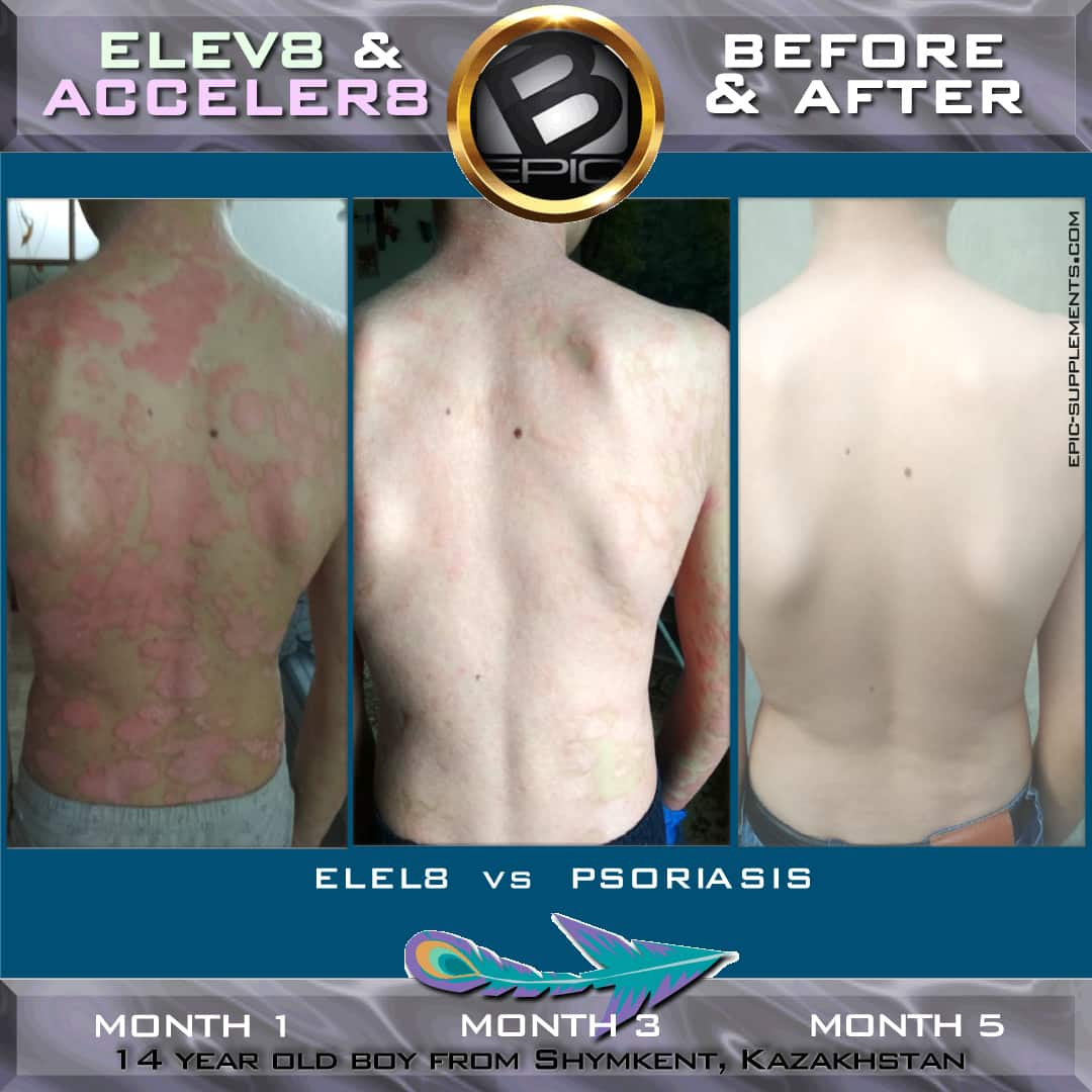 Bepic elev8 againts psoriasis review
