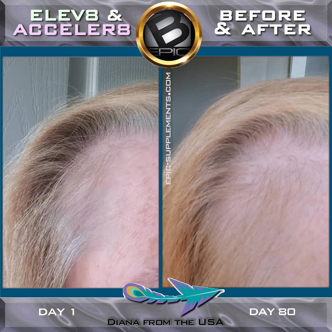 bepic pills for hair (result)