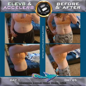 bepic 3 cap system for weight loss before after