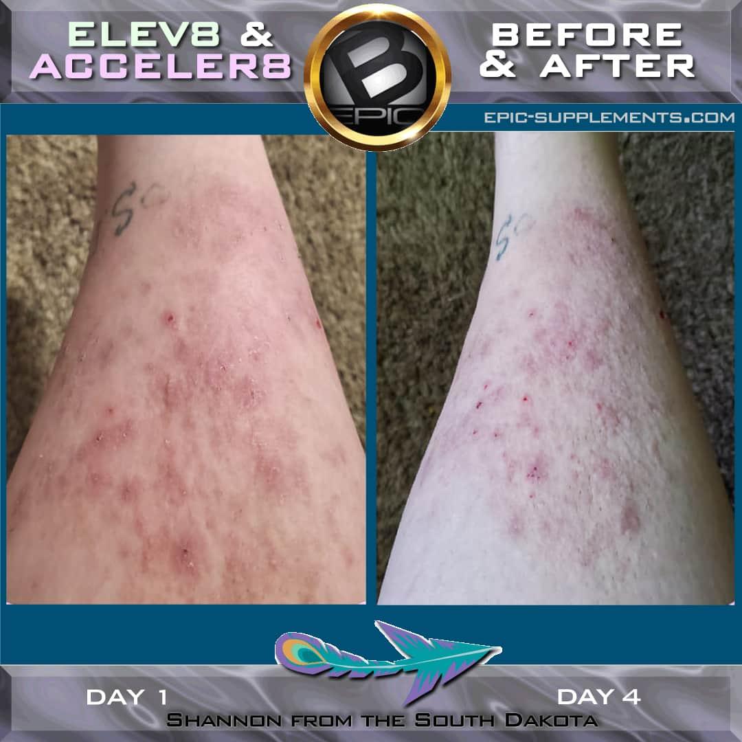 bepic elev8 leg skin