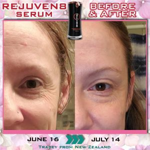 Bepic Rejuven8 serum progress