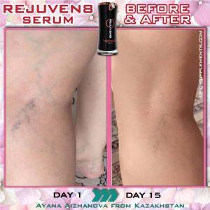 bepic Rejuven8 vs varicose veins