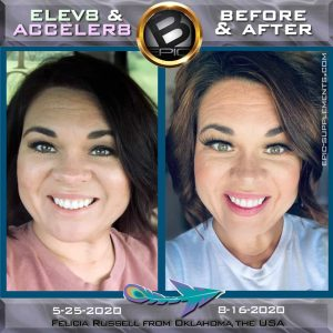 Face Rejuvenation with bepic's Elev8 pills (review from USA)