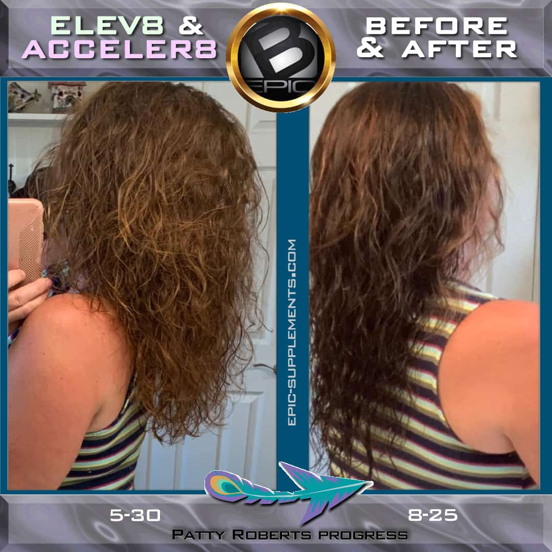 bepic pills Elev8/Acceler8 for fast hair growth
