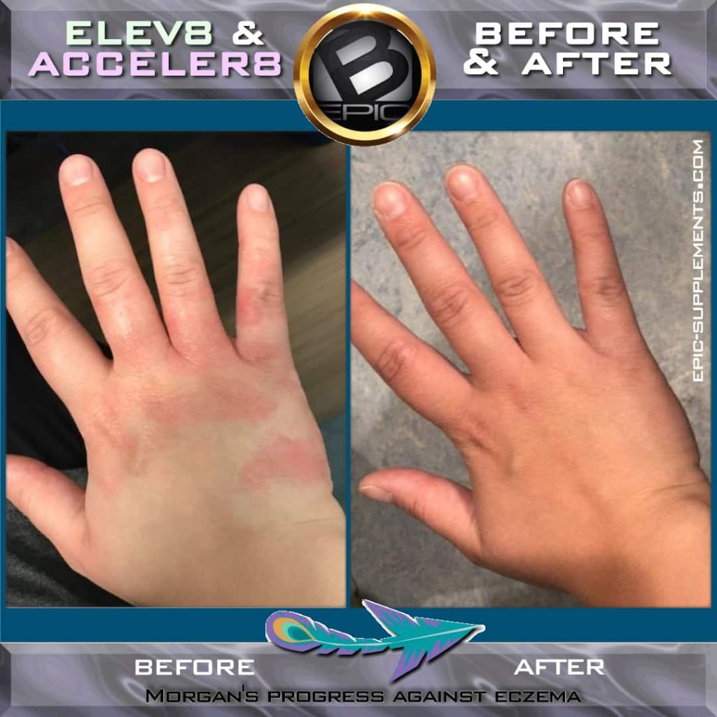 How Bepic pills acts against eczema (before and after pictures)