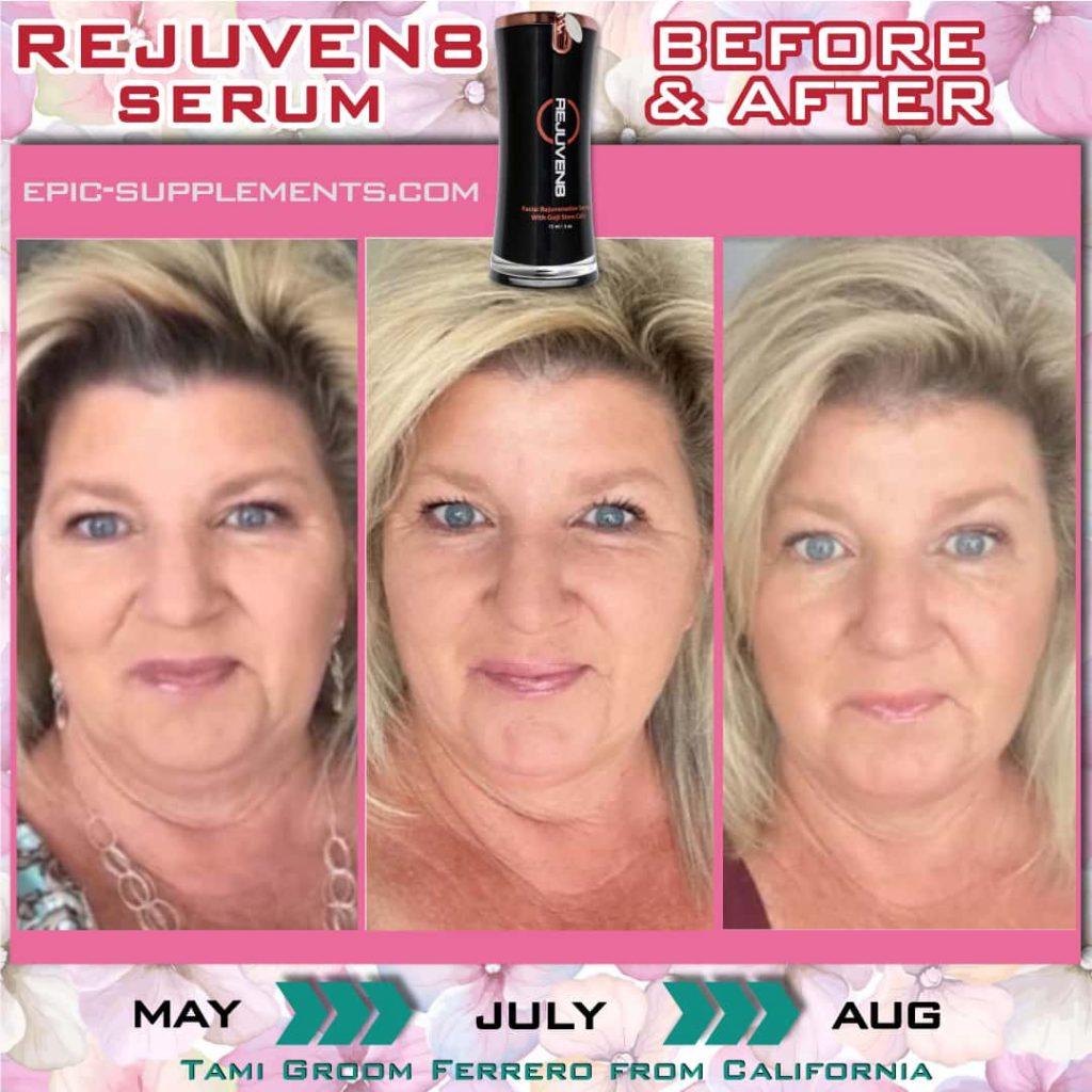 Bepic Rejuven8 skin serum (testimonial from california, USA)