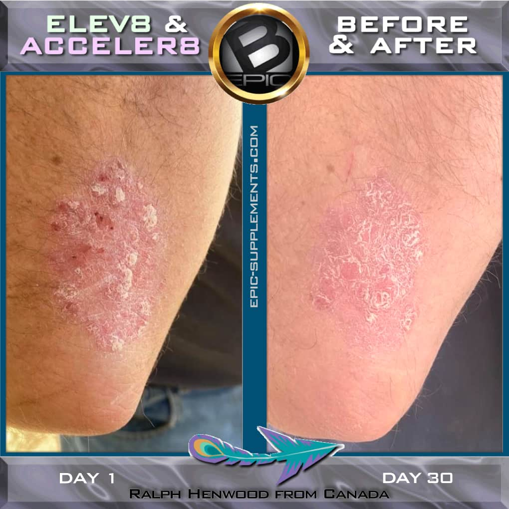 B-Epic 3-pills-system for psoriasis (before and after pics))