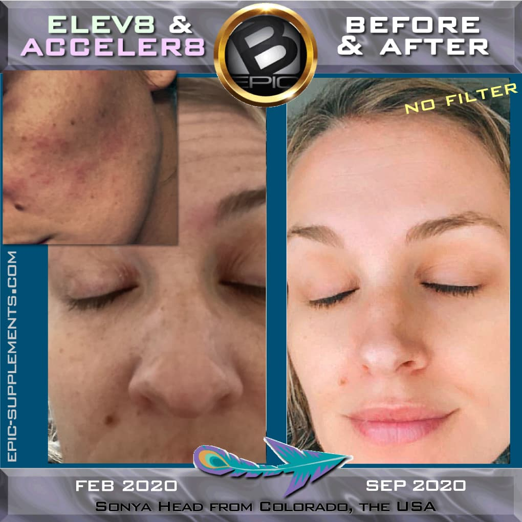bepic 3 capsules for skin beauty (before and after pics)