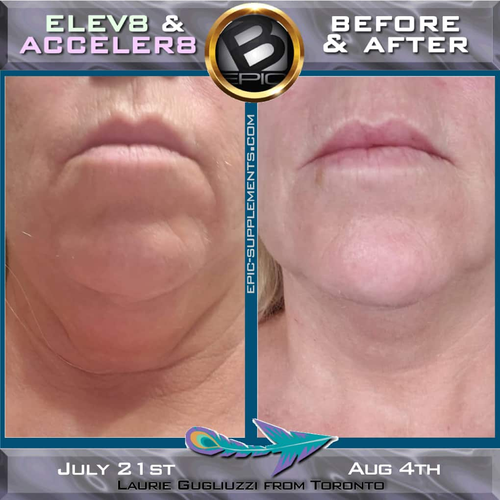 Face lifting with b-epic 3 pills