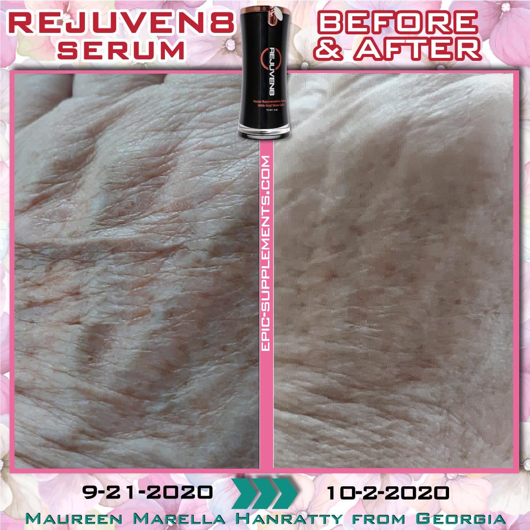 Bepic's Rejuven8 serum for hand skin