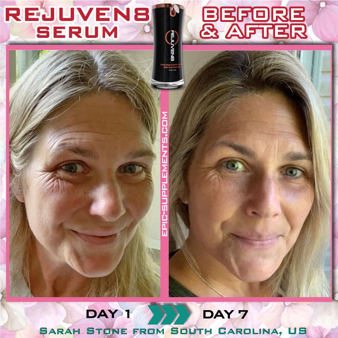 bepic's rejuven8 face serum (apply result from USA)