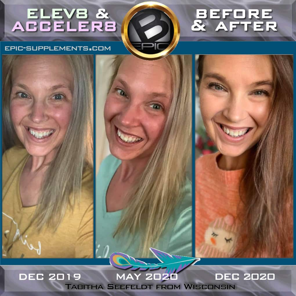 Transformation progress with bepic 3-pill system