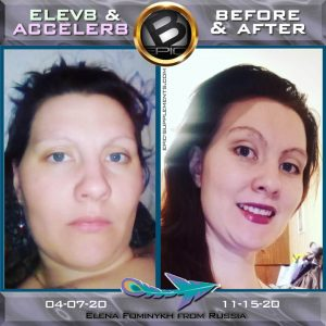 visual transformation with B-Epic 3-pill-system (before and after)
