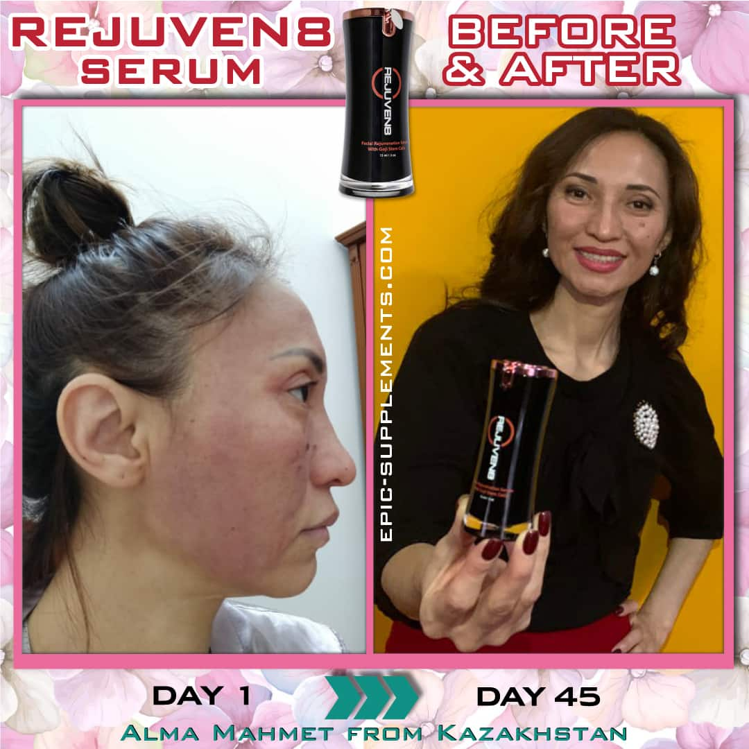 BEpic Rejuven8 for face redness (real photos)