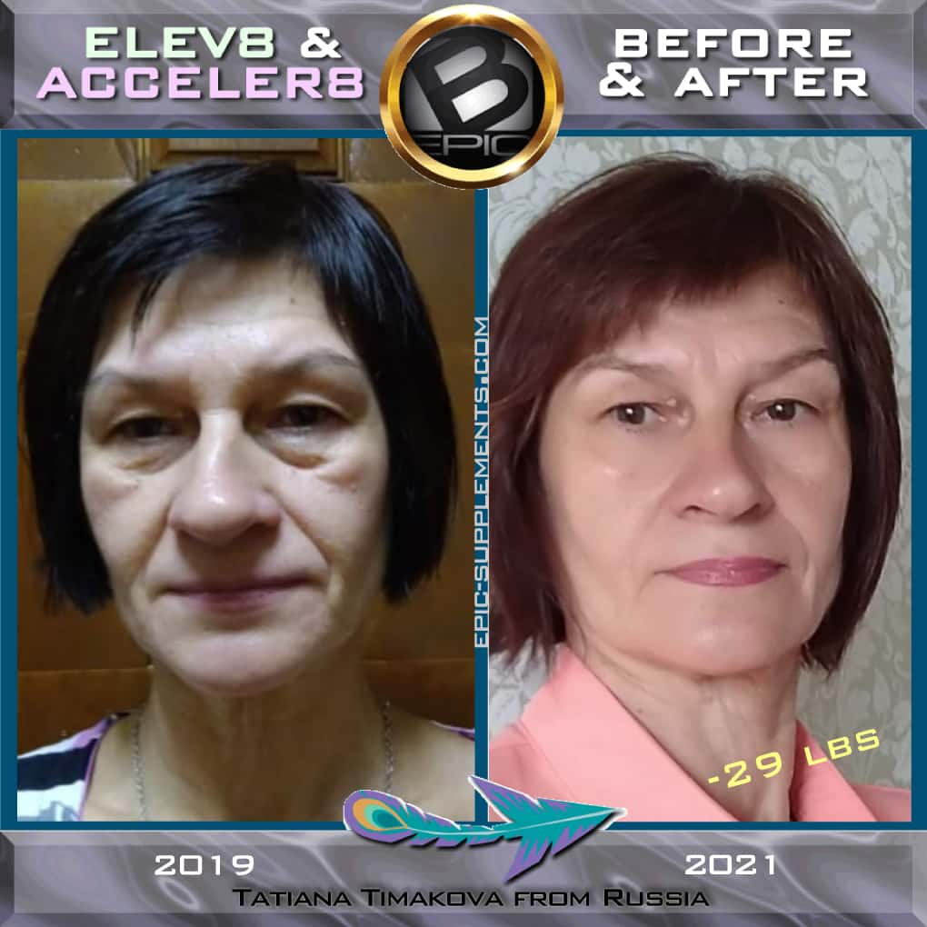 bepic for beauty (photo before-and-after)
