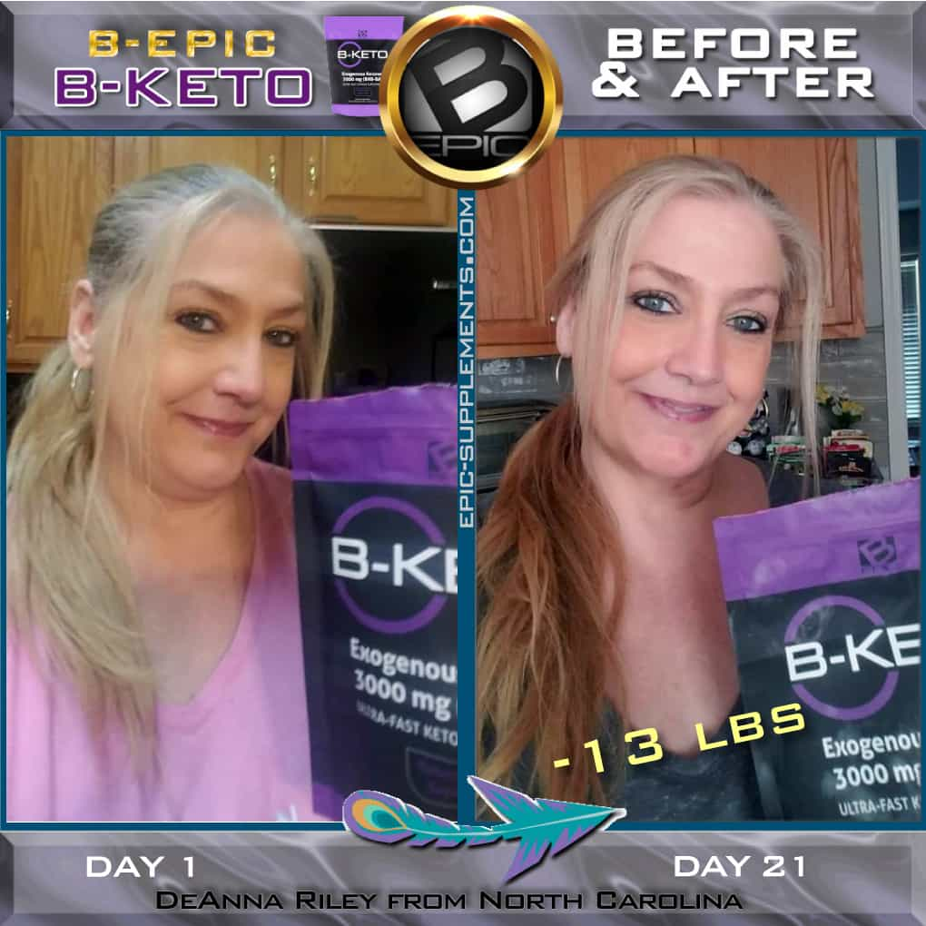 Bketo before and after pics and review from North Carolina, US