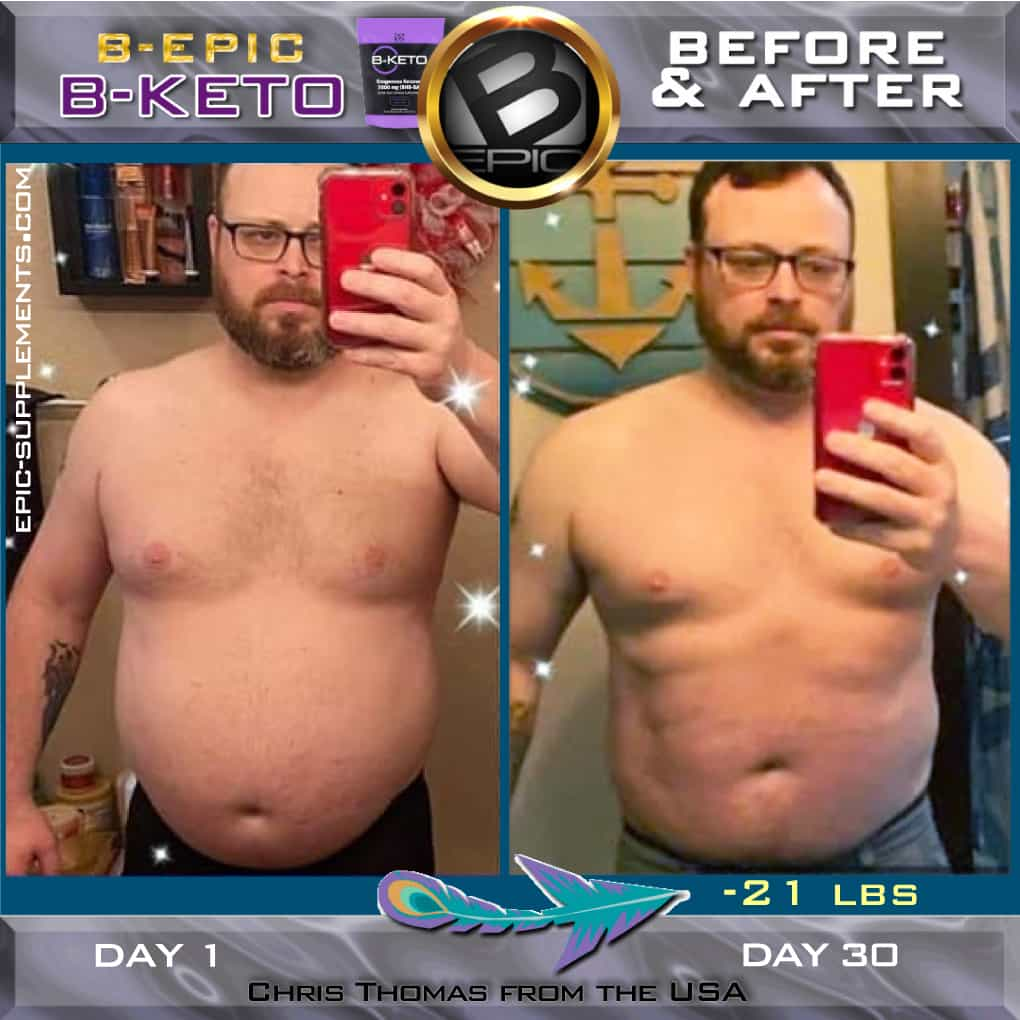 BEpic BKeto before after pictures