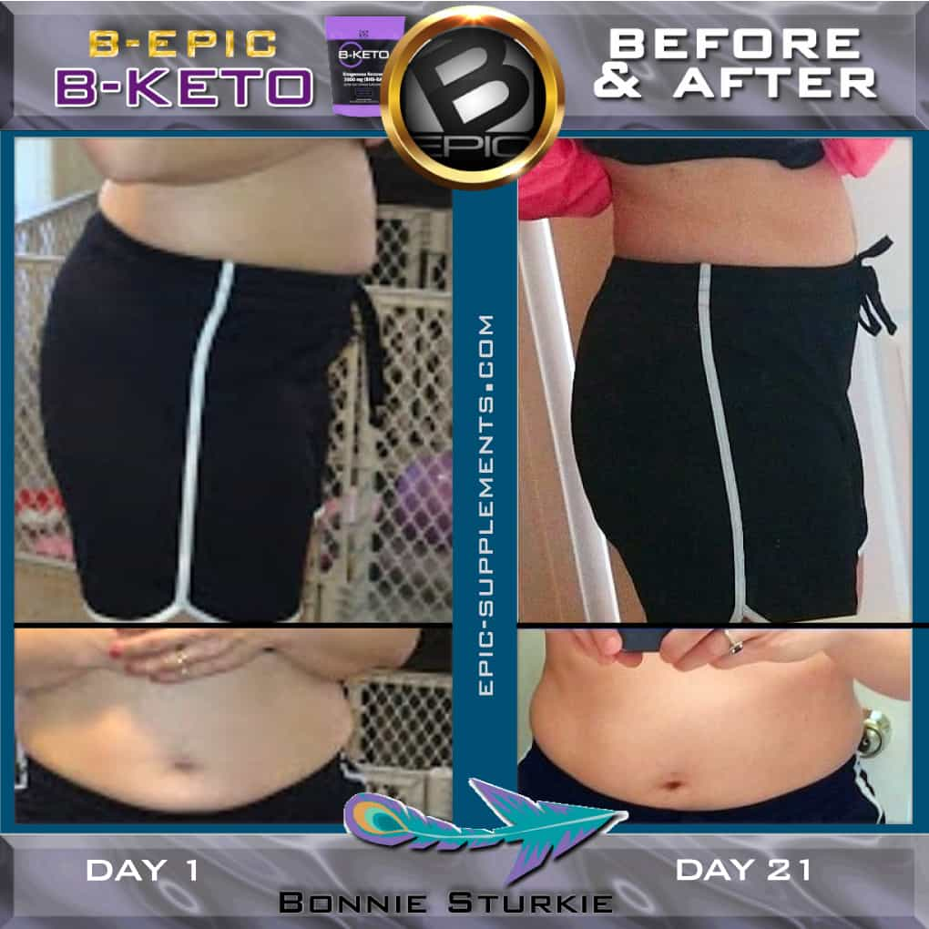 BEpic BKeto for woman before and after pictures