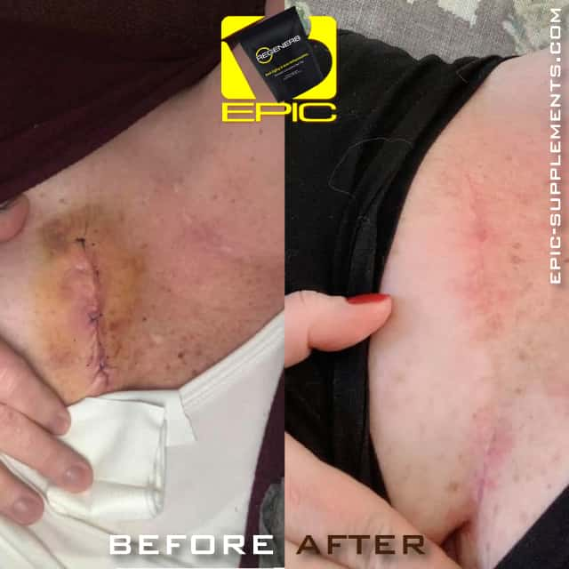 Wound recovery with Bepic Regener8