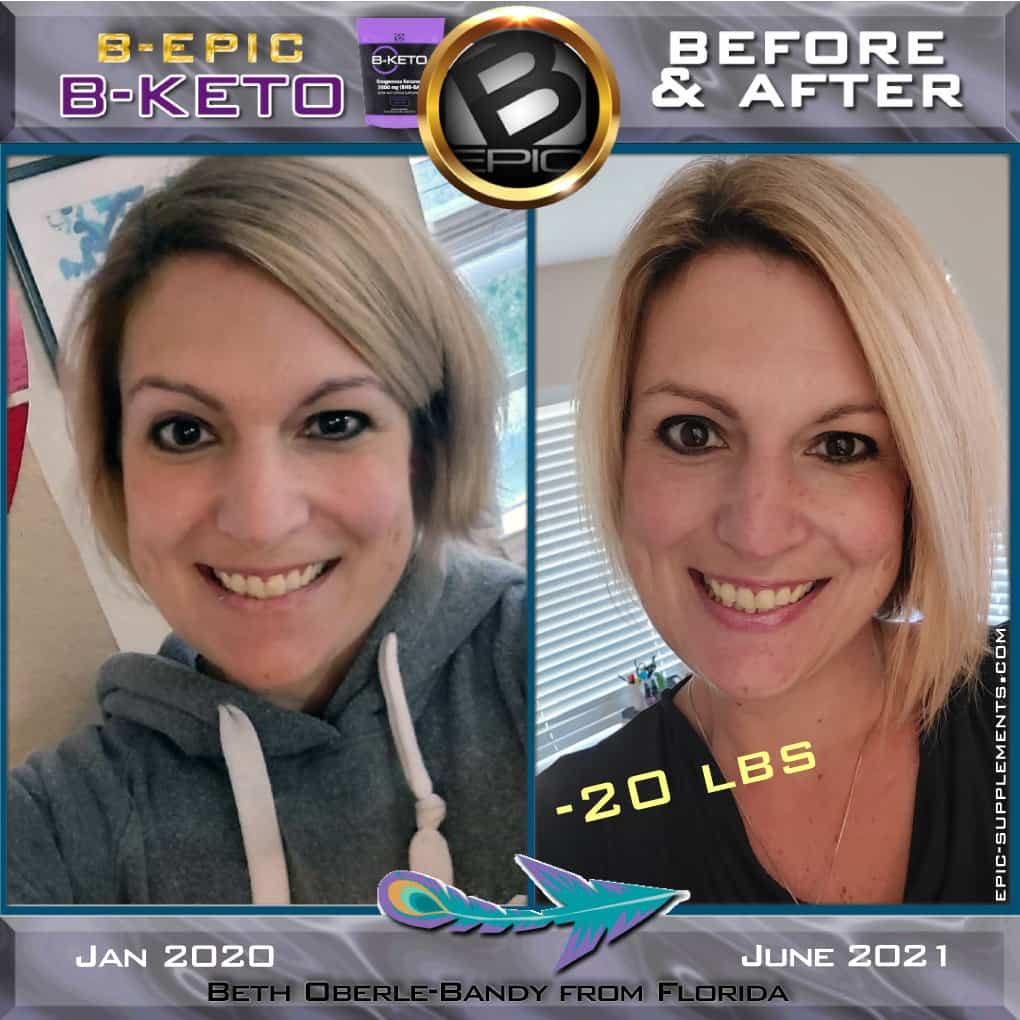 B-Epic BKETO (customer before-after pictures)